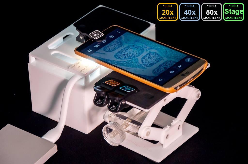 Chula SmartLens กล้องจุลทรรศน์ จุฬา จุฬาฯ สมาร์ทเลนส์ สมาร์ทโฟน เทคโนโลยี